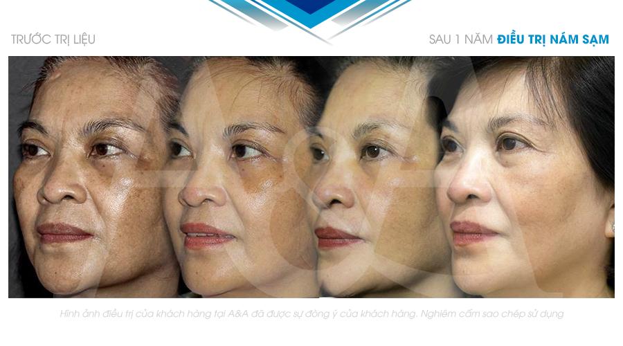 advanced facial procedure